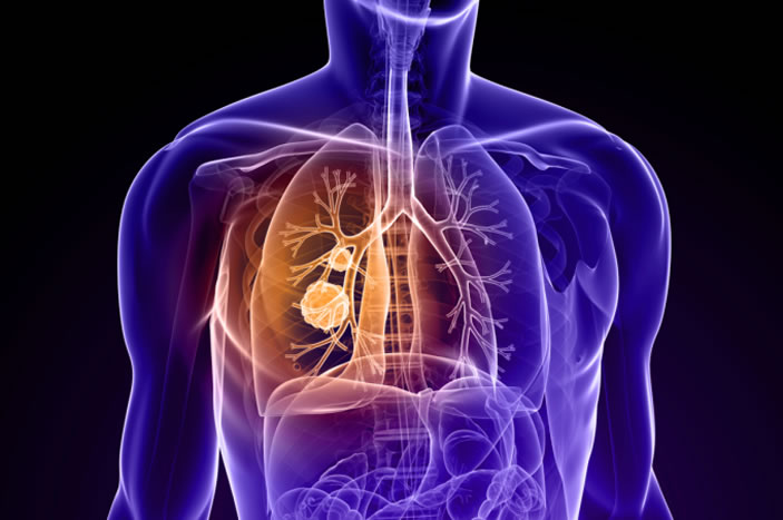 Lung cancer is by far the leading cause of cancer death in men and women. But lung cancers ¿ even specific types such as small-cell or non-small cell lung cancers ¿ are not all the same.
